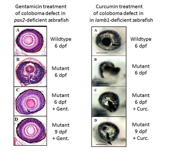 Small molecule therapeutics in zebrafish models of anterior segment dysgenesis.
