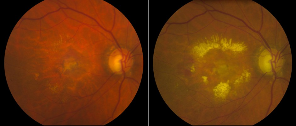 Recurrence Fundus Photos. Fundus photography demonstrates (left) an inactive lesion after the final PDT clinic visit, and (right) a recurrence of choroidal neovascularization 18 months following. (Potter MJ, Szabo SM. Br J Ophthalmol. 2007;91:753)
