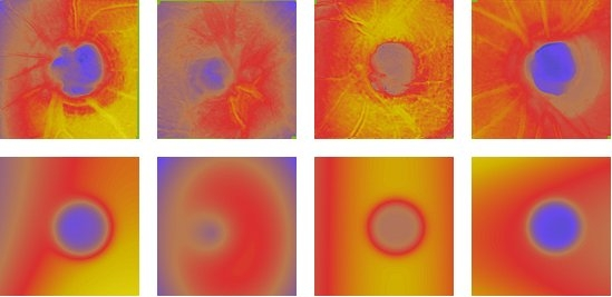 Upper row: pseudocolor images of optic nerve head topography obtained with the Heidelberg Retina Tomograph; lower row: mathematical models of the same images, from which a Glaucoma Probability Score (GPS) can be calculated. See Swindale et al. (2000) IOVS, 1,1730.
